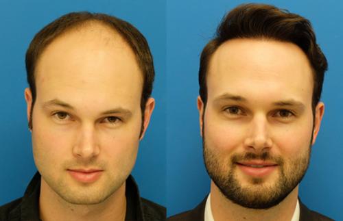 زراعة الشعر في تركيا | معلومات هامة قبل السفر 2