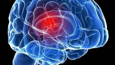 Photo of سرطان الدماغ .. الأسباب والأعراض والتطورات التي تطرأ على مريض سرطان الدماغ