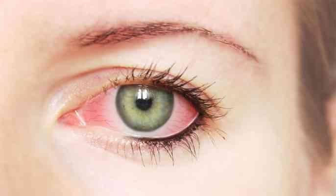 فوائد قشر الموز للعين