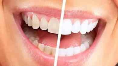 فوائد قشر البيض للأسنان..