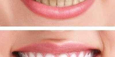 علاج إصفرار الاسنان من خلال بيكربونات الصوديوم - استخدامات بيكربونات الصوديوم للاسنان