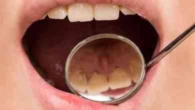 Photo of كيف أتخلص من التسوس .. تعرف على طرق العناية بأسنانك وحمايتها من التسوس