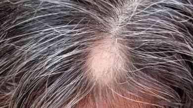 Photo of اعراض نقص فيتامينات الشعر .. تعرف عليها وعلى طرق علاجها لتتمتع بشعر صحى ..