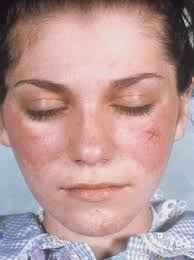 أعراض أصابة الوجه بالحساسية