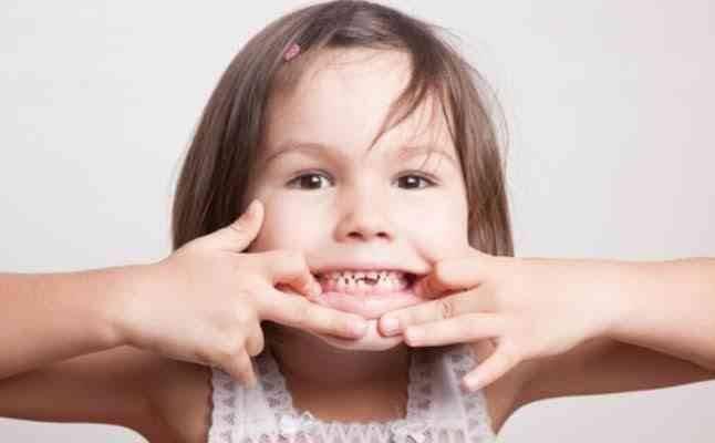 مشاكل في الأسنان ...