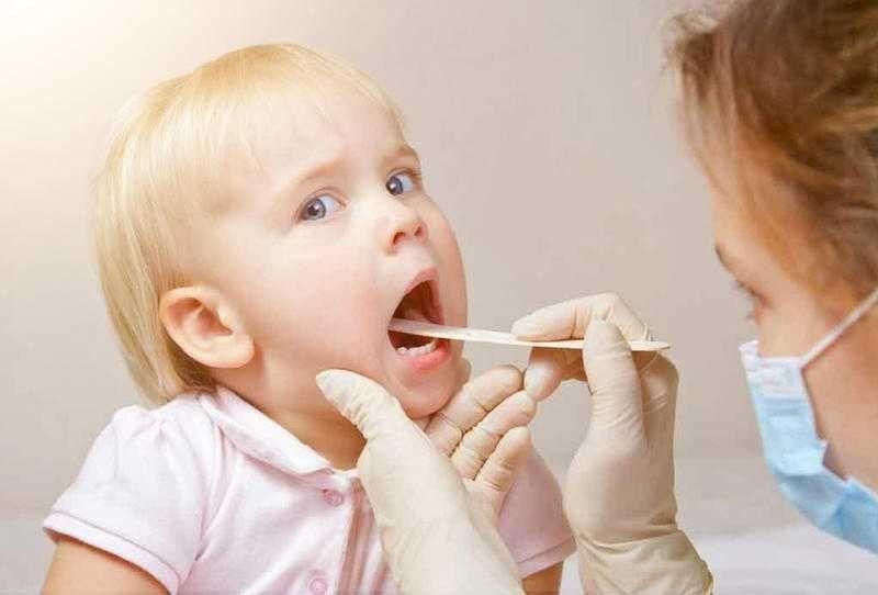علاج اللوز عند الأطفال