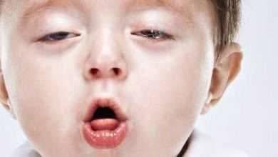 Photo of علاج السعال عند الأطفال