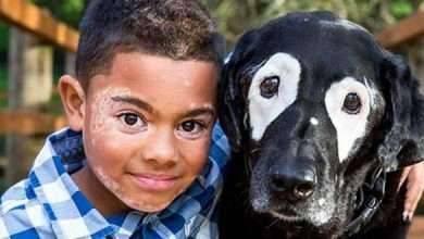 Photo of البهاق عند الأطفال ..تعرف علي  أسبابه ونصائح للتعامل مع الطفل المصاب بالبهاق