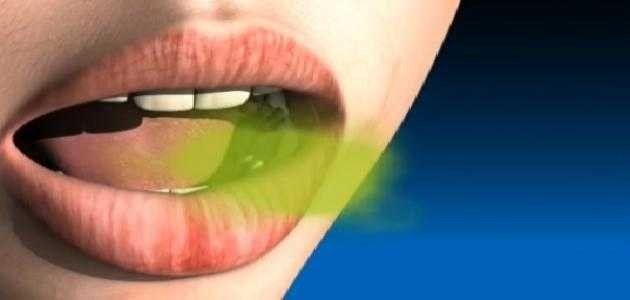 غسول الفم