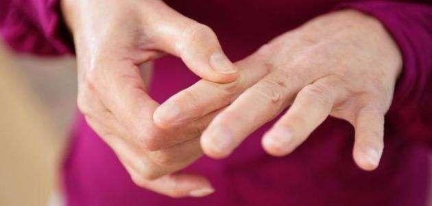 علاج مرض متلازمة شوغرن - ماهو مرض متلازمة شوغرن