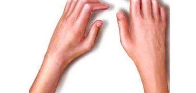 أسباب مرض متلازمة شوغرن - ماهو مرض متلازمة شوغرن