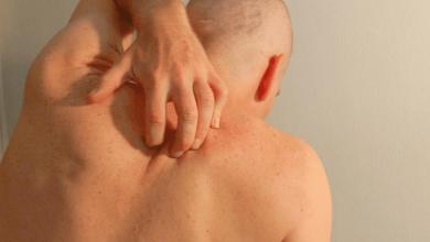 علاج حساسية الجلد في الشتاء