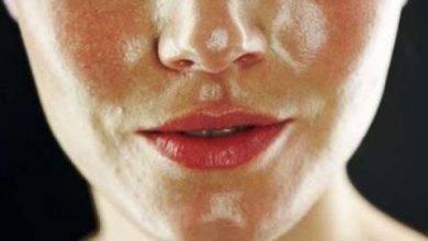 Photo of كيفية العناية بالبشرة الدهنية الحساسة… سبع خطوات للعناية بالبشرة الدهنية الحساسة
