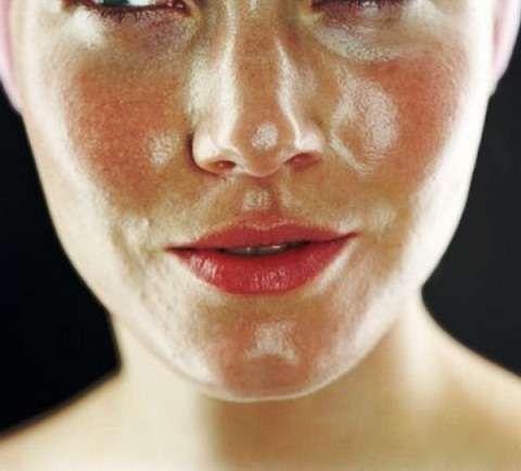 كيفية العناية بالبشرة الدهنية الحساسة