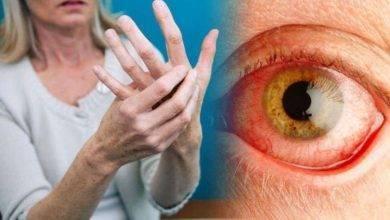 Photo of هل مرض الروماتويد خطير ؟… تعرف على مرض التهاب المفاصل الروماتويدي وخطورته