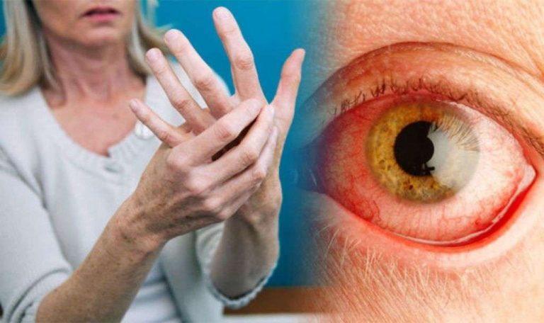 هل مرض الروماتويد خطير ؟
