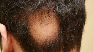 Photo of هل مرض الثعلبة معدي ؟… تعرف على كل ما يخص مرض الثعلبة وهل هو معدي أم لا؟