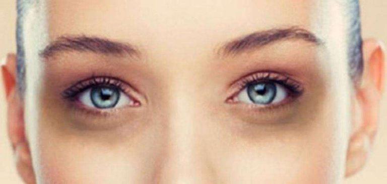 ما هي أسباب السواد تحت العين