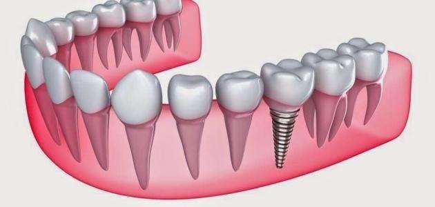 Photo of عدد جذور الأسنان ..