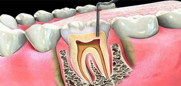 Photo of ماهو علاج الم الاسنان ..
