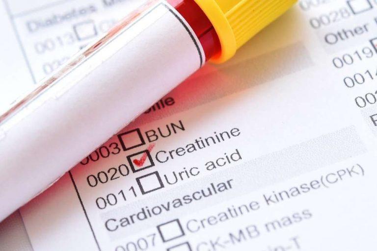 تحليل كرياتينين