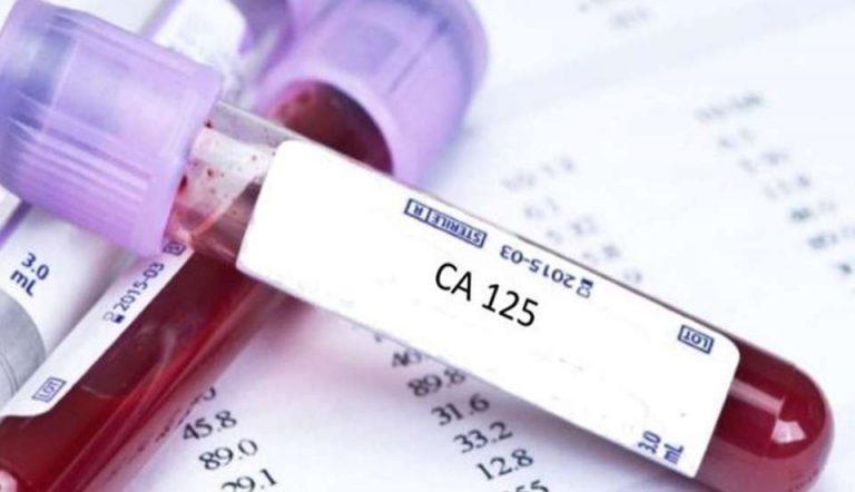 ما هو تحليل ast
