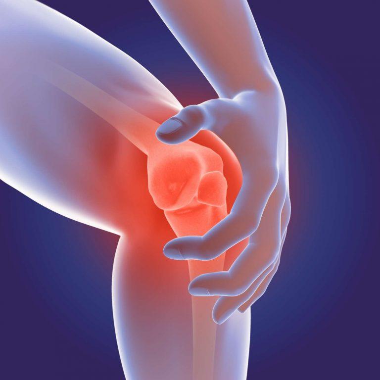 انواع تحاليل التهاب المفاصل