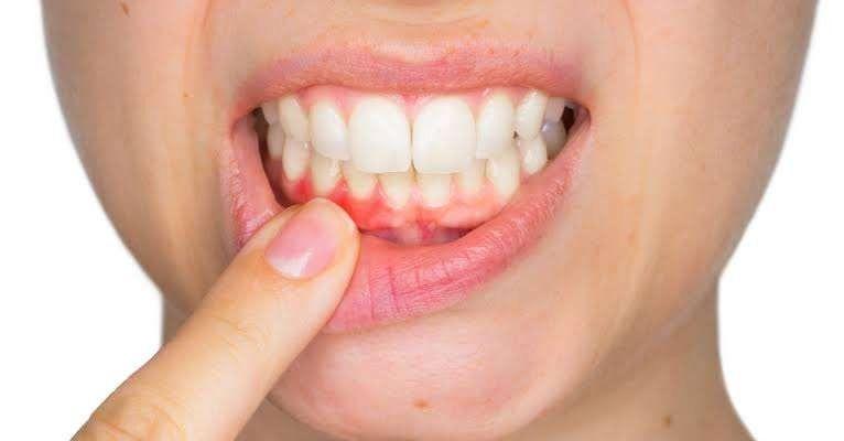 فوائد القرنفل للأسنان