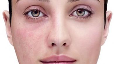 Photo of علاج حساسية المكياج