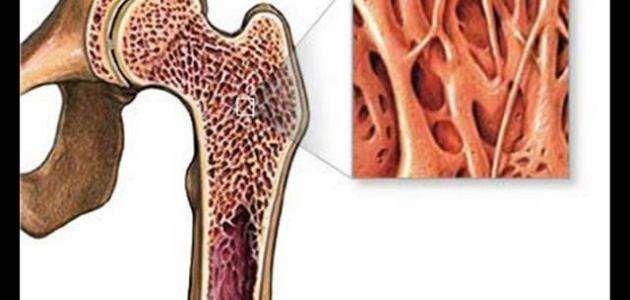 فوائد نخاع العظم للجسم
