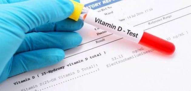 متى يجب إجراء تحليل فيتامين د الطبيعي