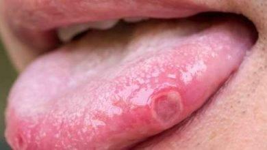Photo of أعراض سرطان الفم