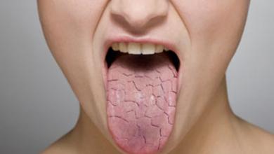 Photo of أشياء تسبب جفاف الفم