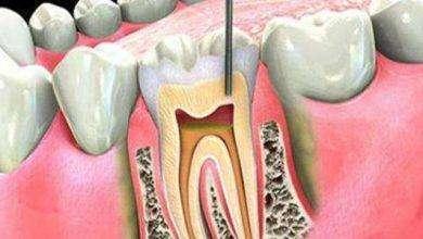 Photo of أعراض عصب الأسنان