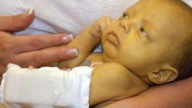Photo of اعراض يرقان حديثي الولادة
