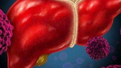 Photo of أعراض سرطان الكبد