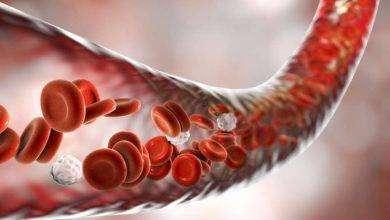 Photo of أعراض غازات الدم
