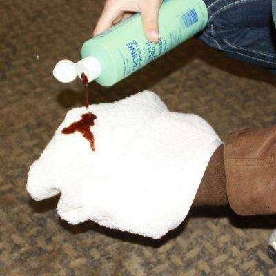قتل البكتريا ومنع العدوى مكان الخياطة