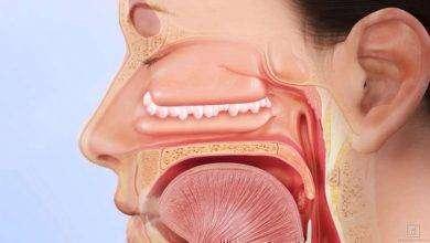 Photo of أعراض لحمية الانف