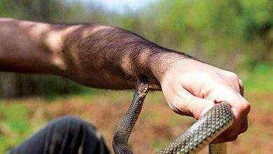 Photo of كيف تعرف لدغة الثعبان ..