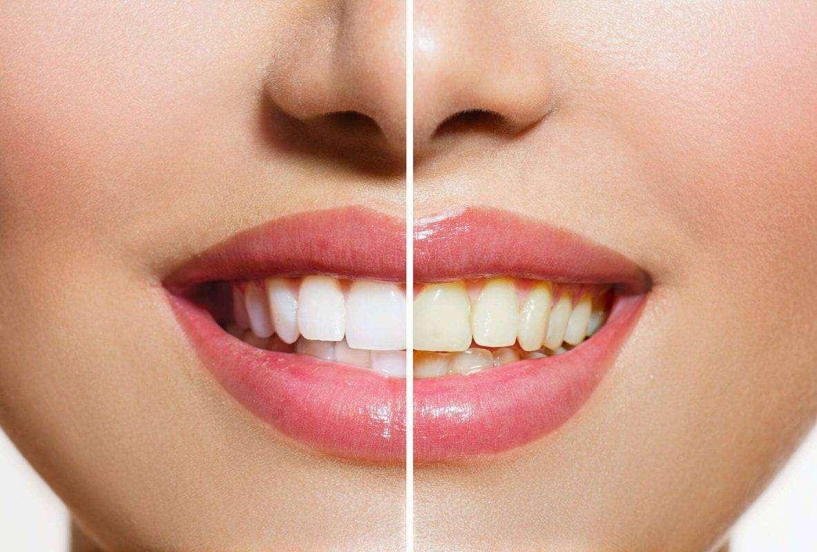 مقال عن الاسنان