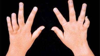 Photo of أعراض روماتيزم الأطفال