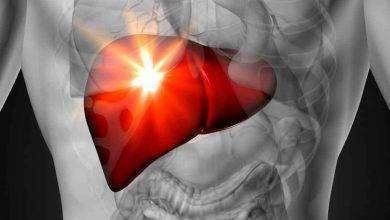 Photo of أعراض قصور الكبد