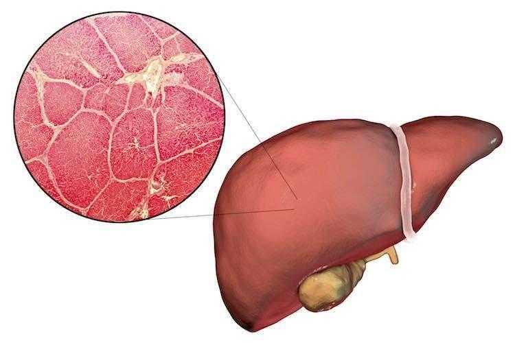 الإختبارت الهامة لمرضي الكبد