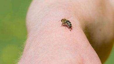 صورة أعراض لسعة النحل