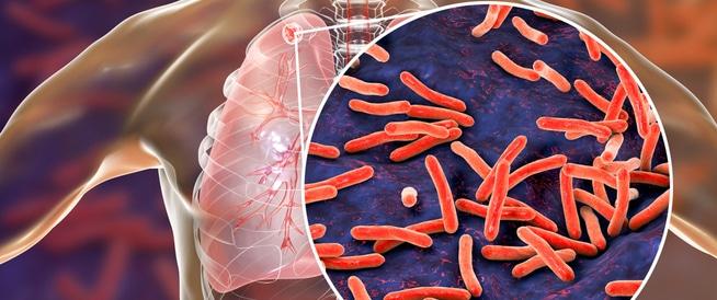 صورة ما هو الدرن… معلومات عن أنواع وأعراض مرض السّلِّ وطرق انتشاره