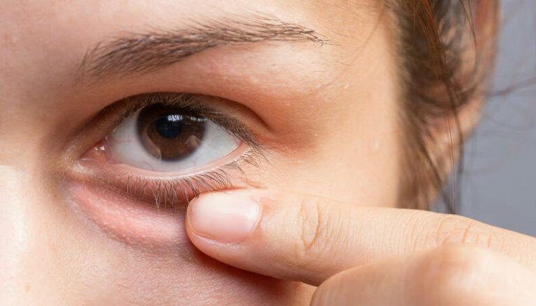 صورة فوائد زيت فيتامين e للعين