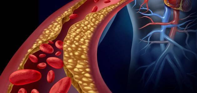 سيمفاستاتين Simvastatin لعلاج ارتفاع الكولسترول