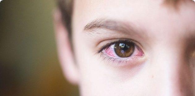 مرهم تيترا Tetra Eys Ointment لعلاج التهاب العين