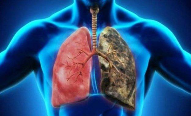 5 امراض تسبب الوفاة غير كورونا